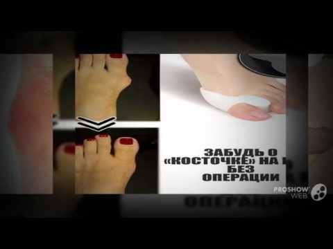 Лечение вальгусной деформации стопы и косточки на ноге