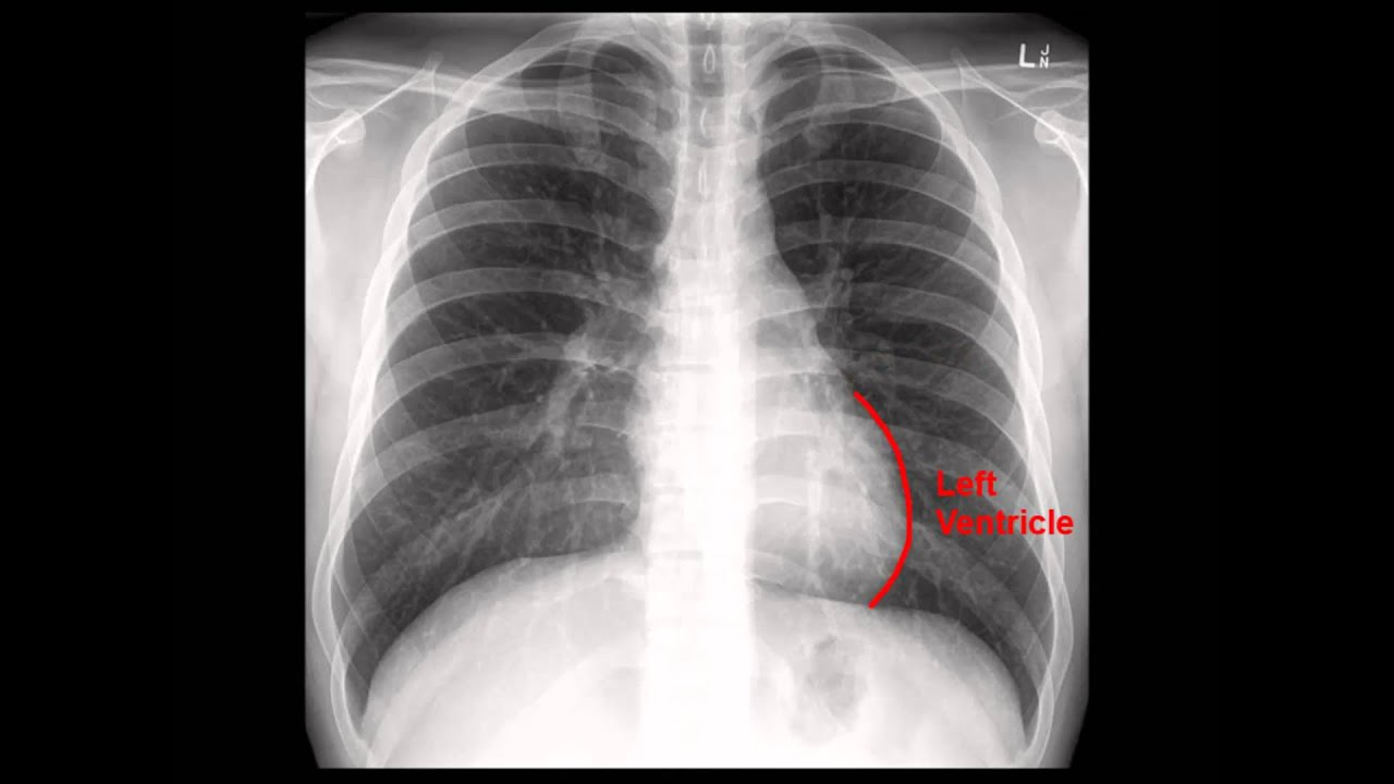 X Ray Chest X-Ray  CXR  Analysis in