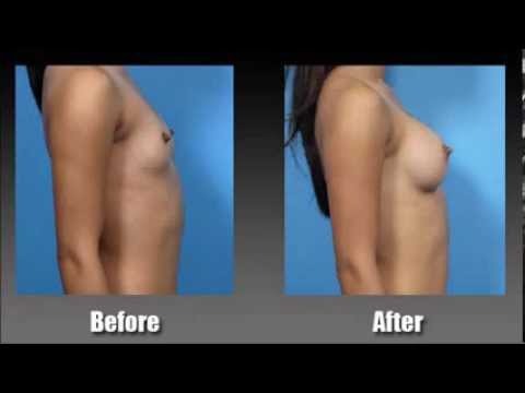 Get Bigger Breasts Without Surgery - Increase Breast Size From A To C Cup Within 60 Days! video