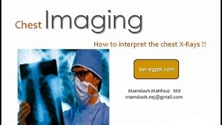 Chest X ray interpretation - DRE 1 - Dr Mamdouh Mahfouz