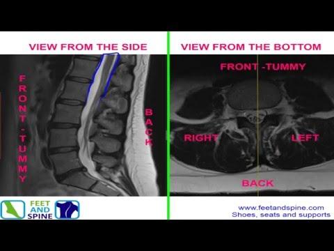 Spine mri anatomy
