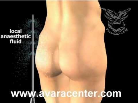 buttock lipo تصغير المؤخرة و تصغير الارداف