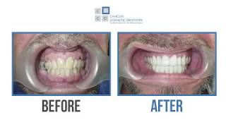 Scotts reviews his smile makeover experience in Cancun Cosmetic Dentistry
