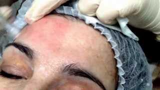 eDS Dermastamp / Dermaroller Skin Rejuvenation Treatment - Outline Clinic Droitwich UK
