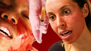 Women Get Facials With Their Own Blood