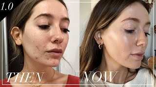 How I cured my hormonal, adult acne | skin series