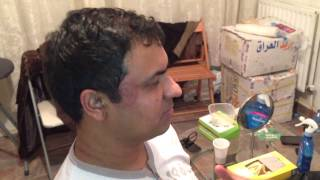 Cupping Lesson 6 الحجامه: Cupping The Side Of The Head (Temple Area)