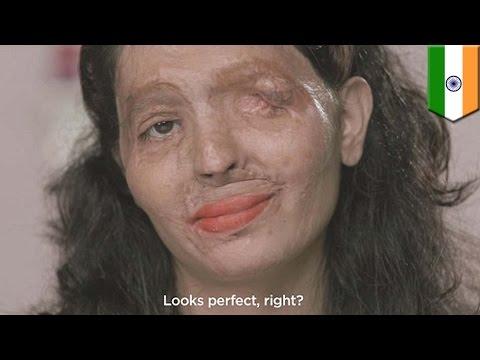 Blogger Kecantikan berani ini memiliki wajah hancur karena asam sulfat - Tomonews