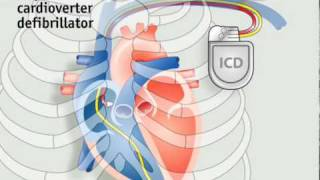 How pacemakers work | The Economist