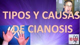 CIANOSIS| Tipos y Causas de Cianosis