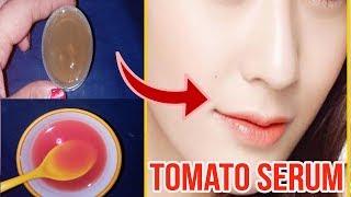 வெயில்காலத்திலும் முகம் குளிர்ச்சியா கருகாமல் இருக்க இந்த சீரம் தடவுங்க |Tomato Serum For Cool Face