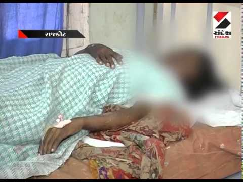 Live Woman Burned Alive Due To Opposing For Rape,rajkot video