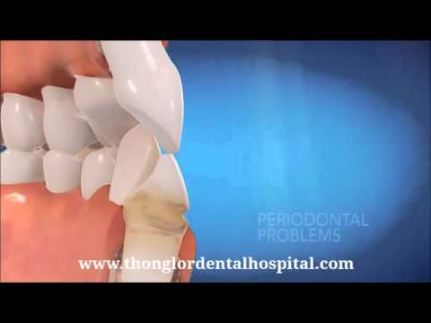 INVISALIGN at Thonglor Dental Hospital