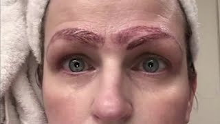 Woman Left With 4 Eyebrows After Microblading Treatment Goes Horribly Wrong