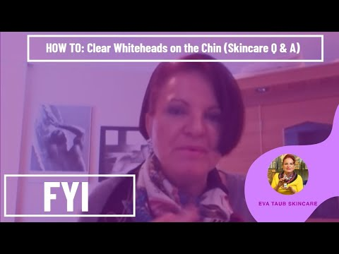 How to Clear Whiteheads on the Chin (Skincare Q & A) - YouTube