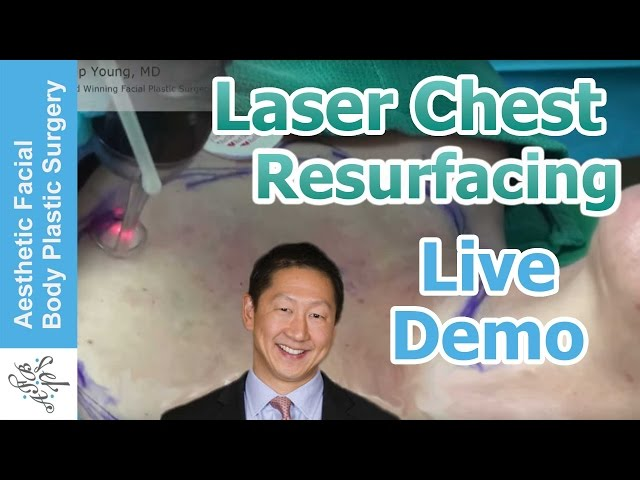 Laser Resurfacing Chest | Decolletage