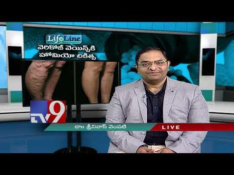 Varicose Veins    Latest Treatment    LifeLine    10-12-18 - TV9