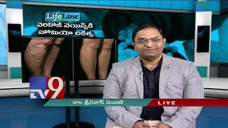 Varicose Veins || Latest Treatment || LifeLine || 10-12-18