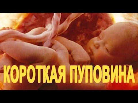 Короткая пуповина при родах. Какие причины и последствия