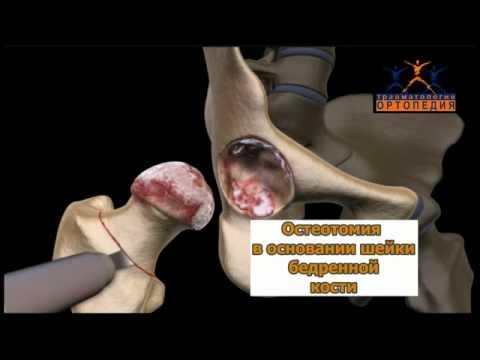 замена тазобедренного сустава в казахстане отзывы