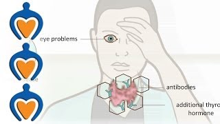 Thyroid problems - most common thyroid problems, symptoms and treatment