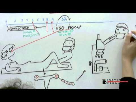 In Vitro Fertilisation (IVF) explained simply