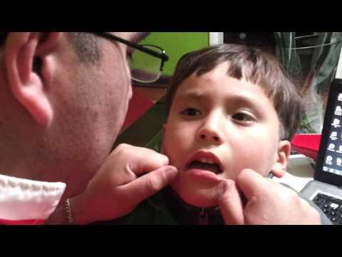 como sacar un diente SIN DOLOR