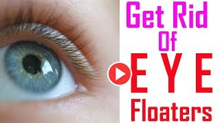 How To Get Rid Of Eye Floaters And Flashes - Remedies One