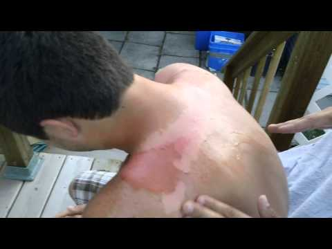 The worst sunburn ever...