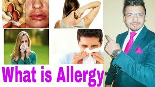 What is Allergy.