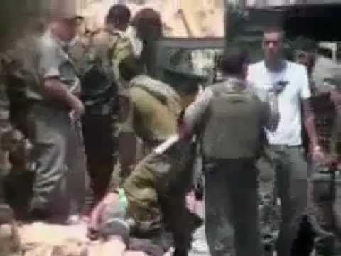 """Soldato israeliano spara proiettile """"gomma"""" al prigioniero a distanza ravvicinata"""