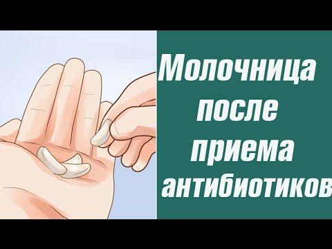 О возникновении молочницы после антибиотиков
