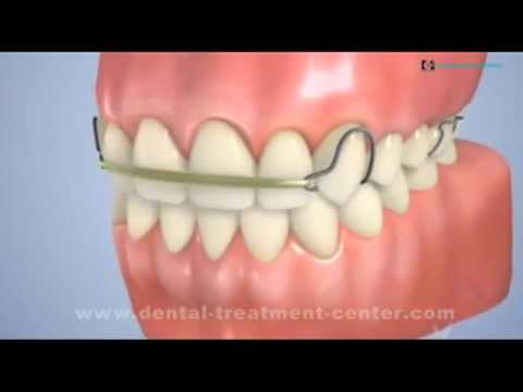 Hyderabad Dental Clinic | Dental Implants India