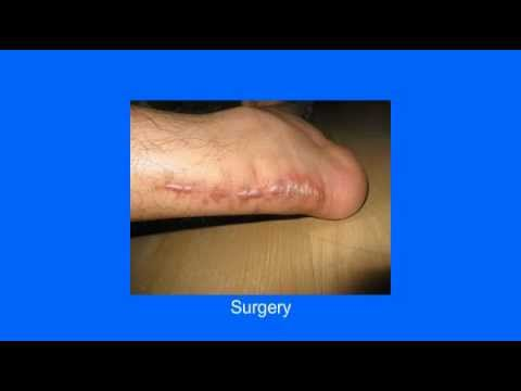 Revitol Scar Removal Cream For Acne And Scar Tissues Treatment - Revitol Scar Cream Review