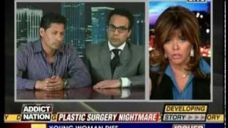 HLN Issues - Dr. Youn Discusses Botched Plastic Surgery