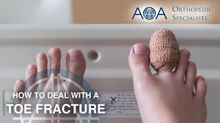 How to Deal with a Toe Fracture - AOA Orthopedic Specialists (Dr. Don Stewart)