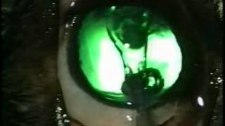 Artificial Lens Implantation on Dog - Tufts Veterinary (Video 3 A)