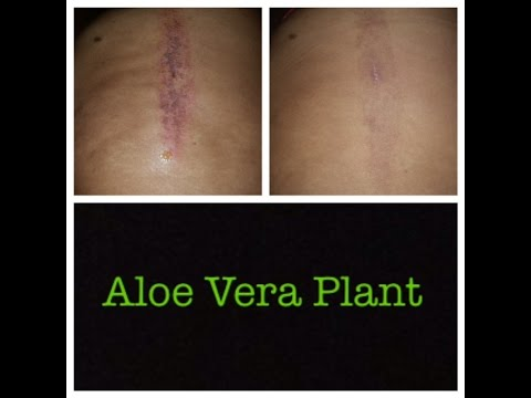 Aloe Vera Gel For Burns And Scars Youtube