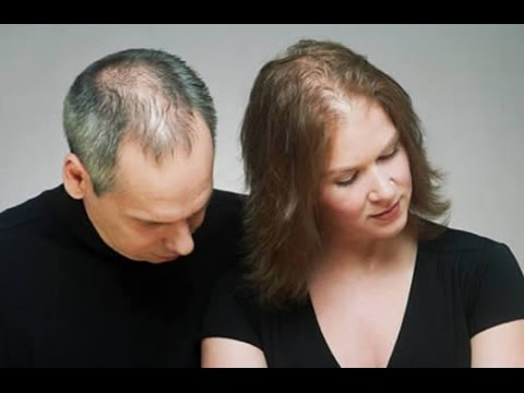 Causes of Hair Loss in Women: Medical Reasons and More
