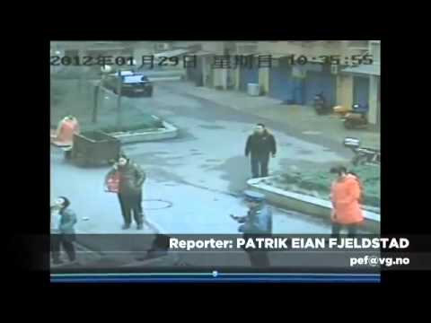Manhole Cover Explode In The Face Of A Man