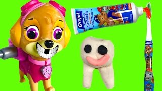 Paw Patrol Skye Loses a Tooth! Dentist Toys -
