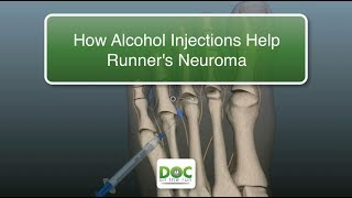 How Alcohol Injections Help Runners with Neuroma Pain