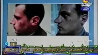 تجميل الانف الجزء 1 - دكتور ابراهيم كامل - dr Ibrahim kamel