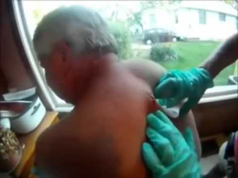 Biggest zit ever.flv - YouTube