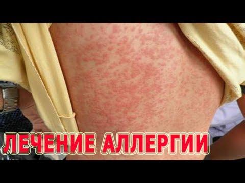 Как вылечить аллергию крапивницу в домашних условиях