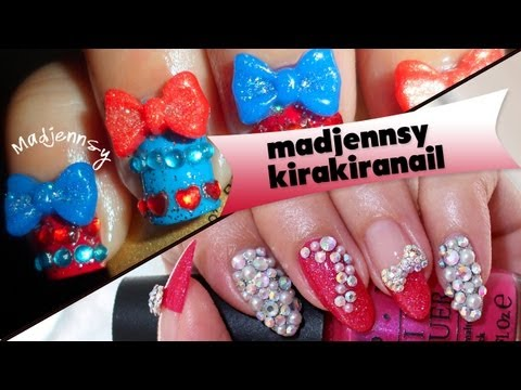 Sweet Bow Lolita Gyaru Nails: Collab with Kirakiranail