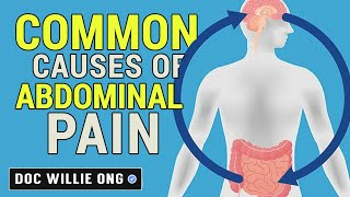 Common Causes of Stomach Pain - Dr Wilie Ong Health Blog #39b