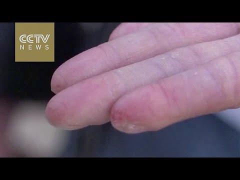 No-fingerprint man refused by driving schools