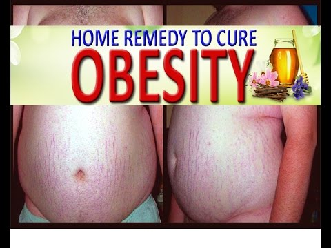 Home Remedy to Cure OBESITY (with English Subtitles & Captions in 162 Languages)