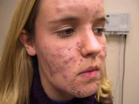 Antibiotics For Acne Treatment - How To Cure With Natural